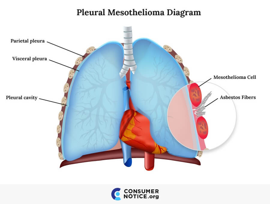 Asbestos and Mesothelioma | Symptoms, Stages & Treatments